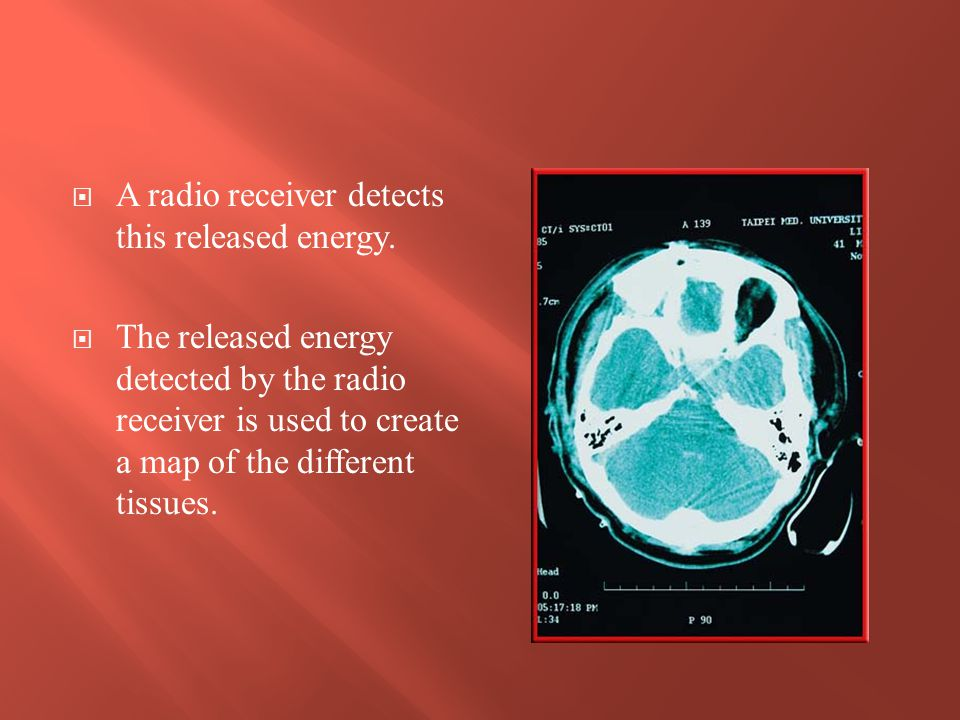 A radio receiver detects this released energy.