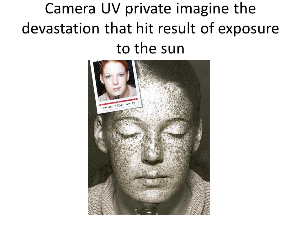 Camera UV private imagine the devastation that hit result of exposure to the sun
