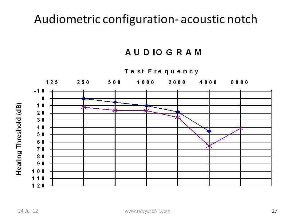 Audiometric configuration- acoustic notch
