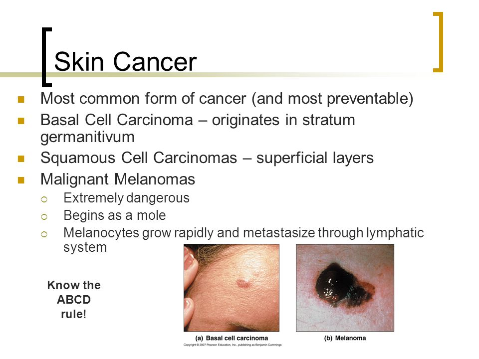 Skin Cancer Most common form of cancer (and most preventable)