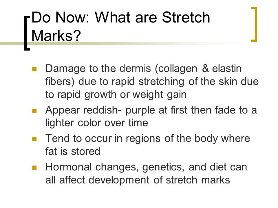 Do Now: What are Stretch Marks