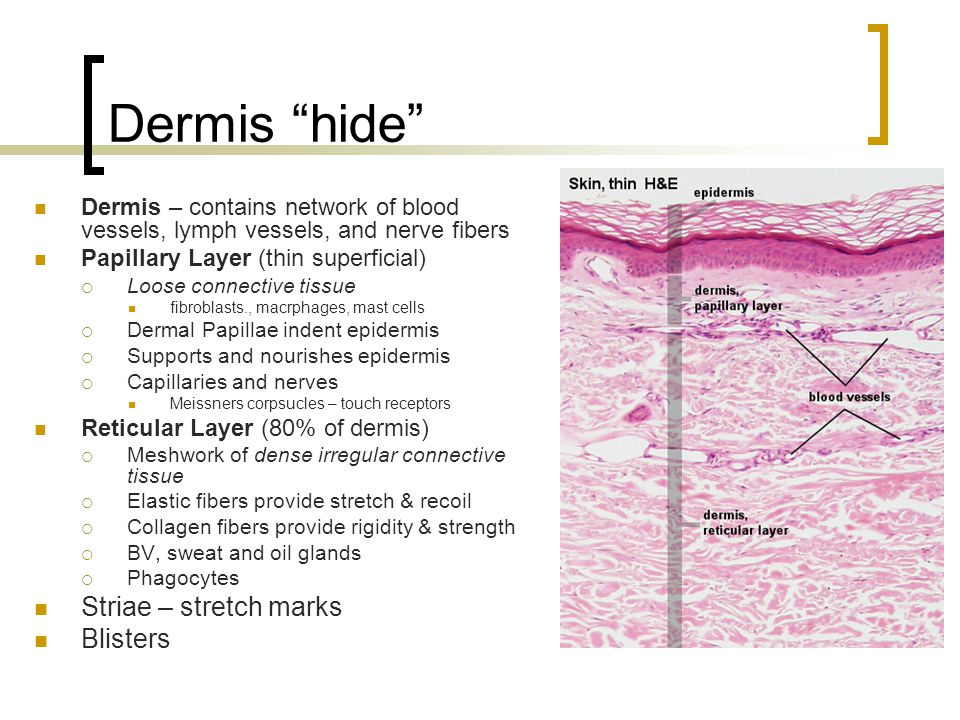 Dermis hide Striae – stretch marks Blisters