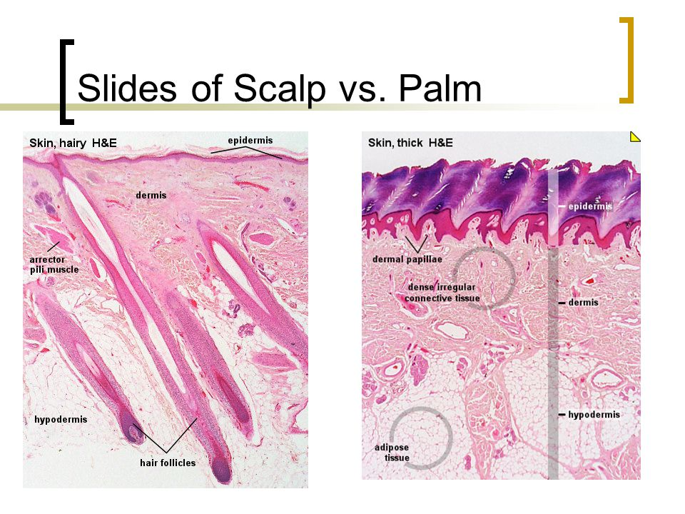 Slides of Scalp vs. Palm