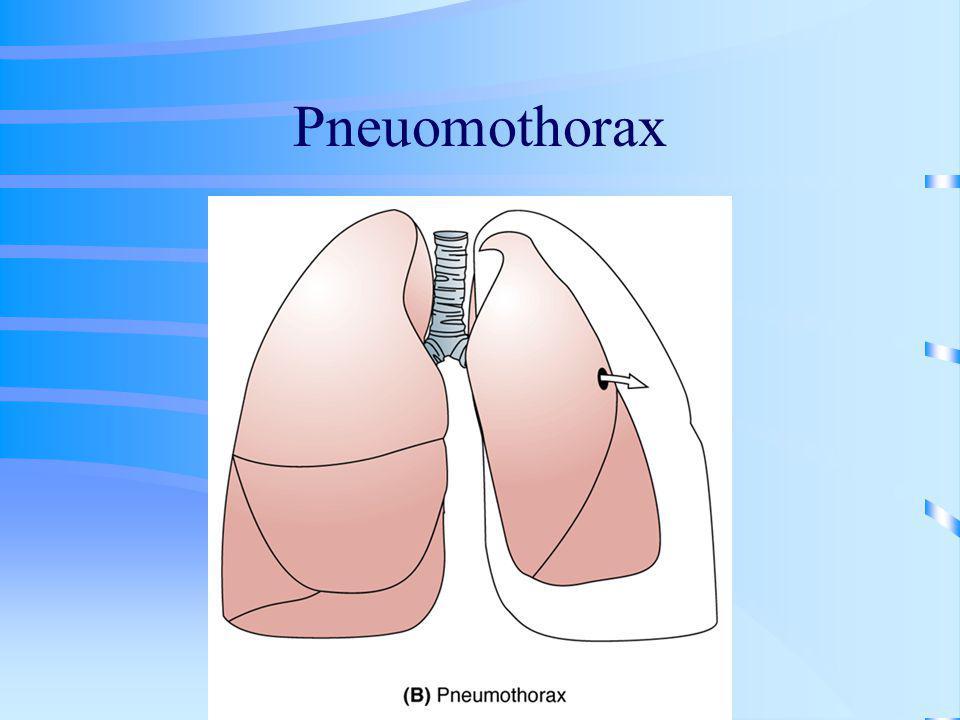 Pneuomothorax