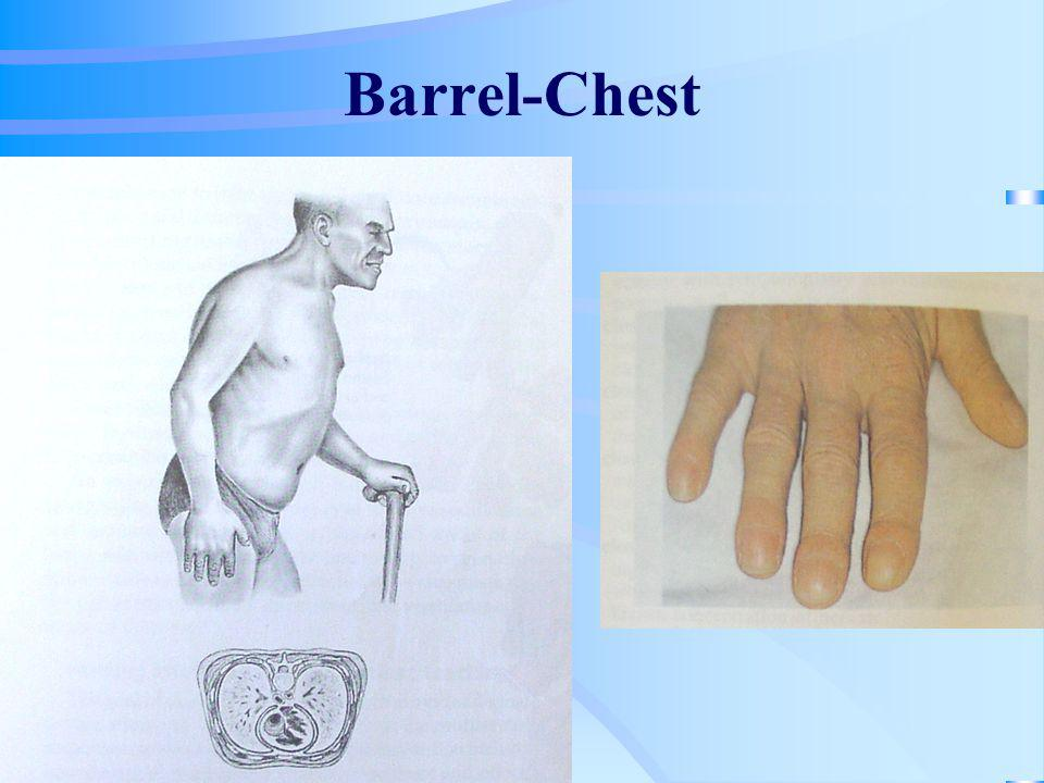 Barrel-Chest