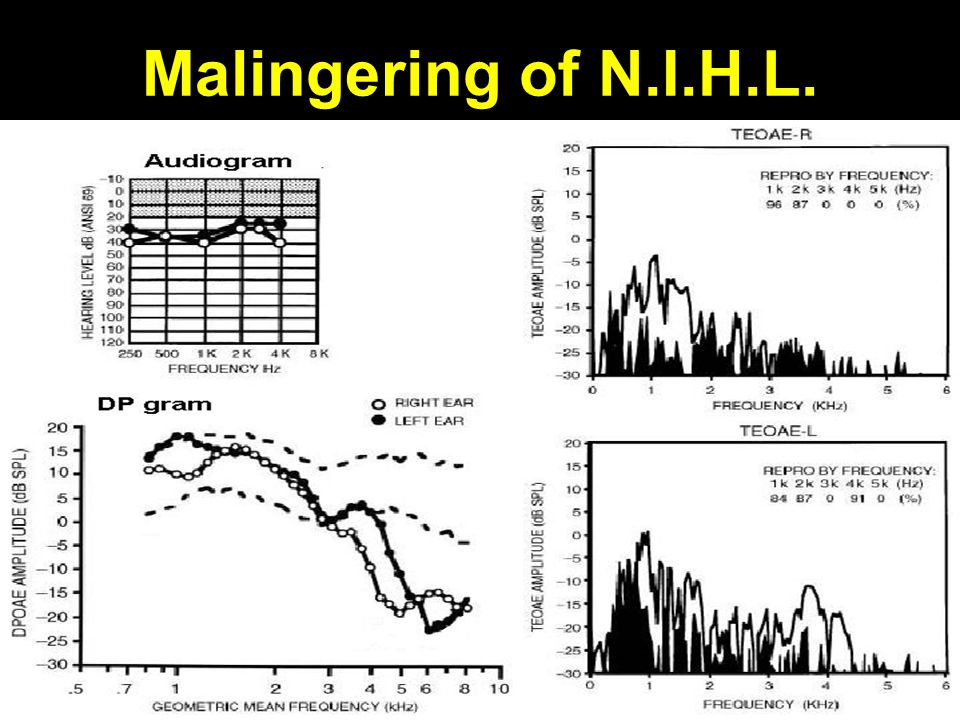 Malingering of N.I.H.L.