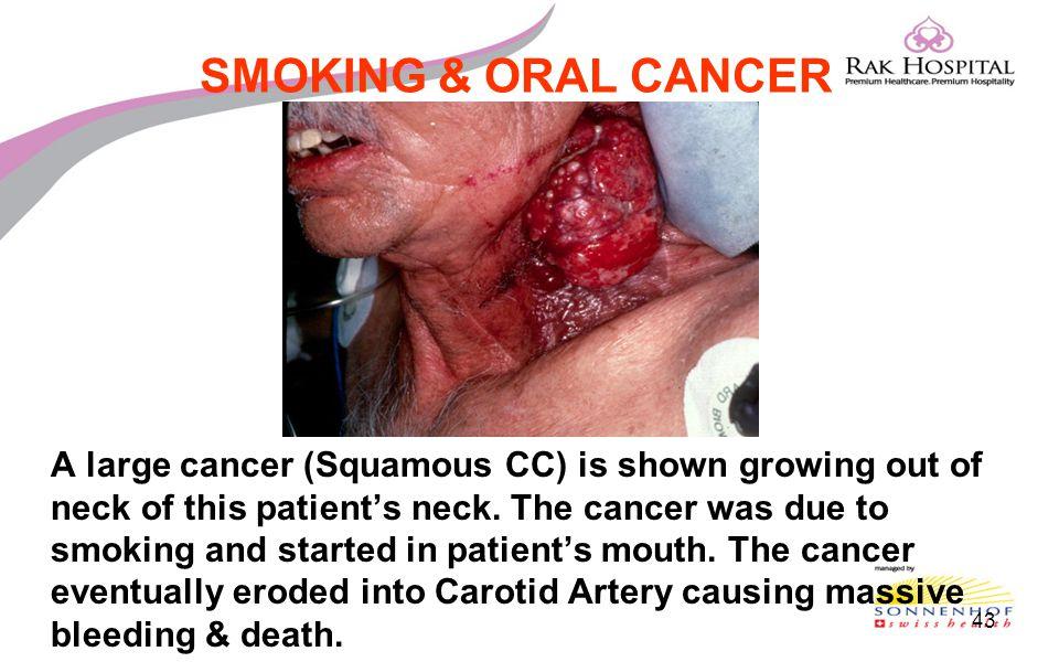SMOKING & ORAL CANCER