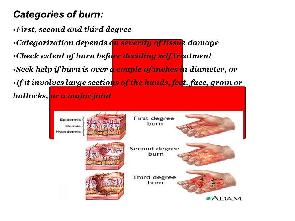 Categories of burn: First, second and third degree