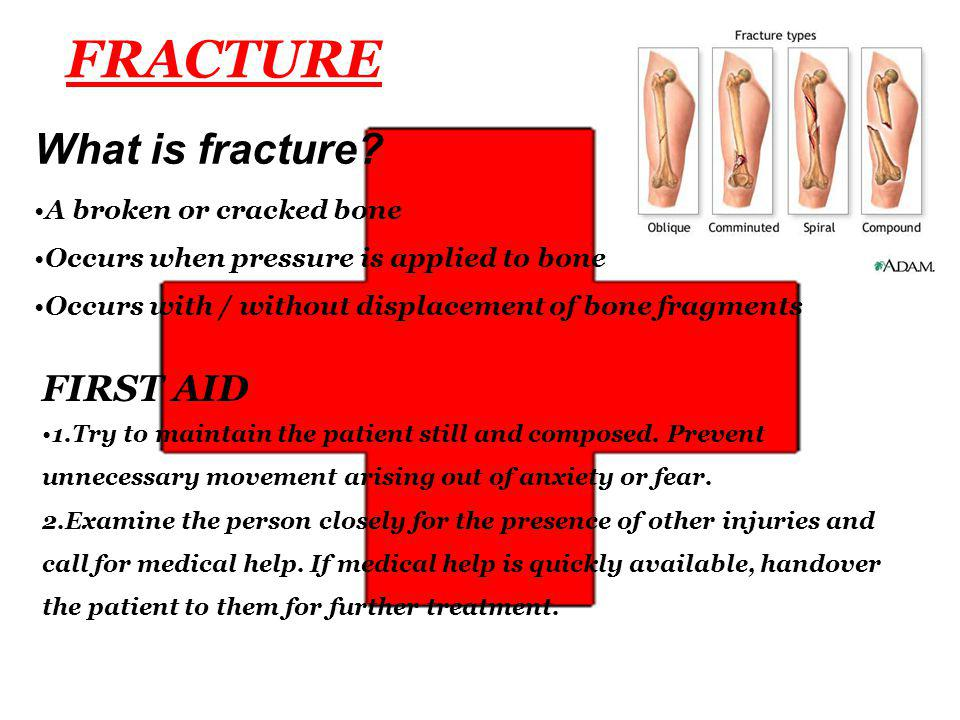 FRACTURE What is fracture FIRST AID A broken or cracked bone