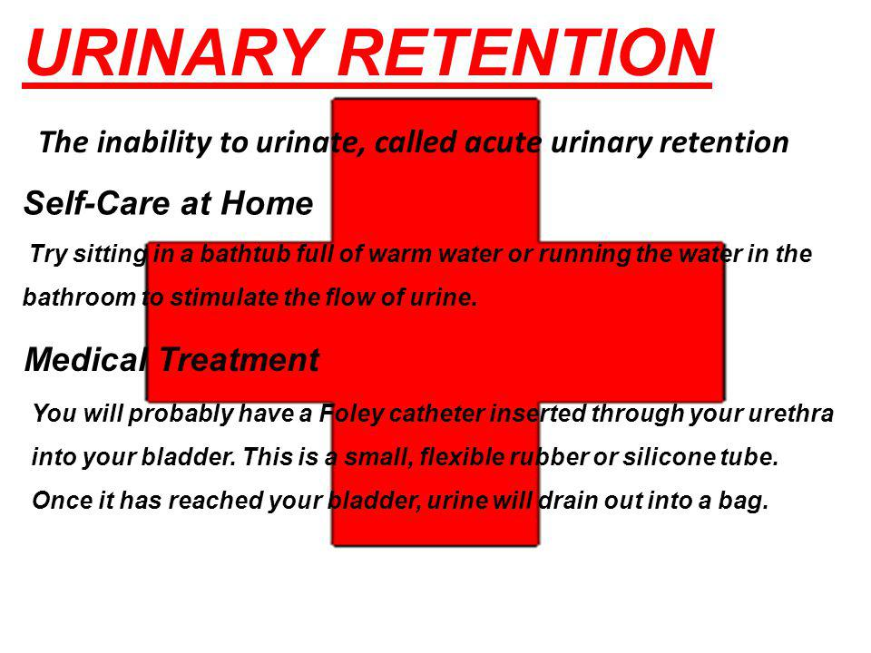 URINARY RETENTION The inability to urinate, called acute urinary retention. Self-Care at Home.