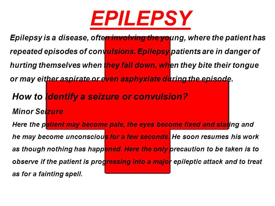 EPILEPSY How to identify a seizure or convulsion Minor Seizure