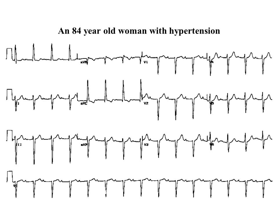 An 84 year old woman with hypertension