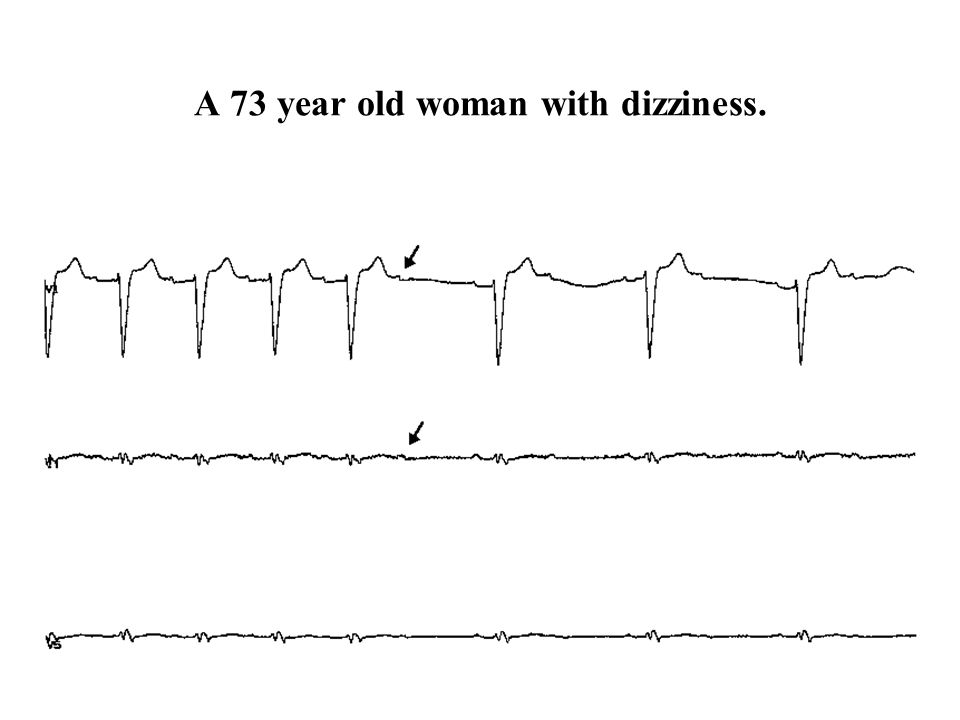 A 73 year old woman with dizziness.