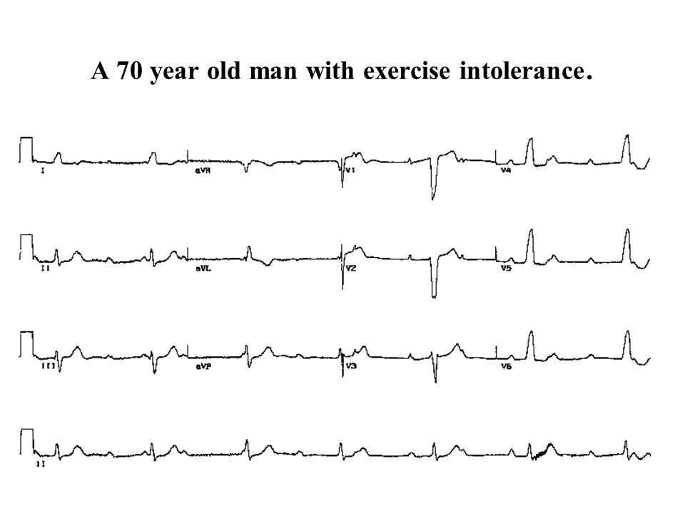A 70 year old man with exercise intolerance.