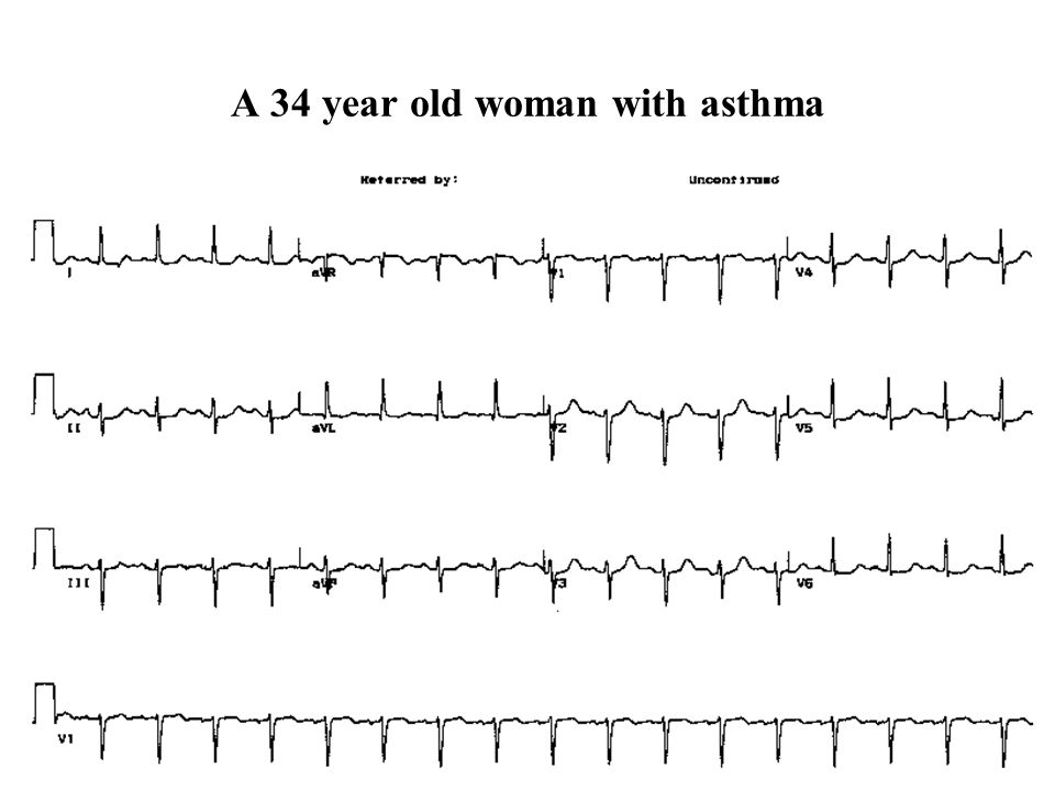 A 34 year old woman with asthma
