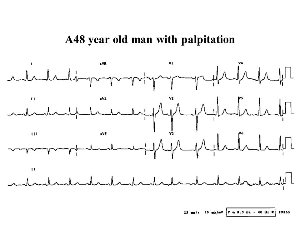 A48 year old man with palpitation