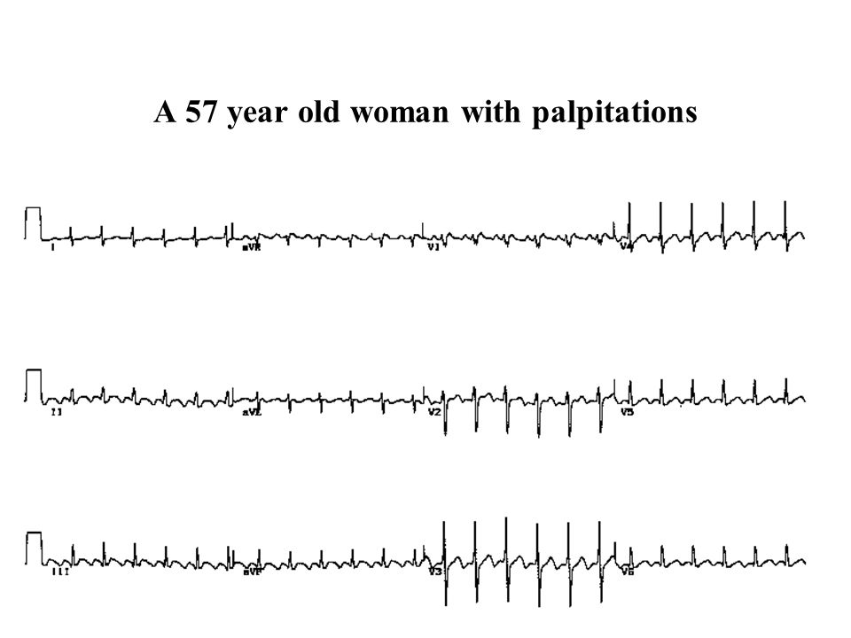 A 57 year old woman with palpitations