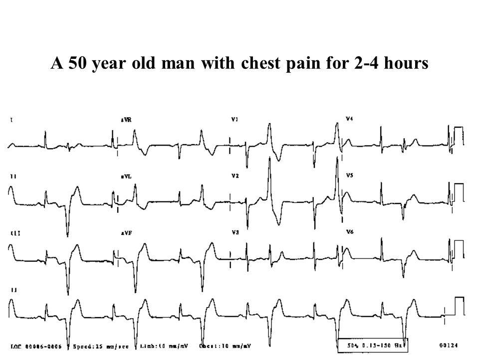 A 50 year old man with chest pain for 2-4 hours