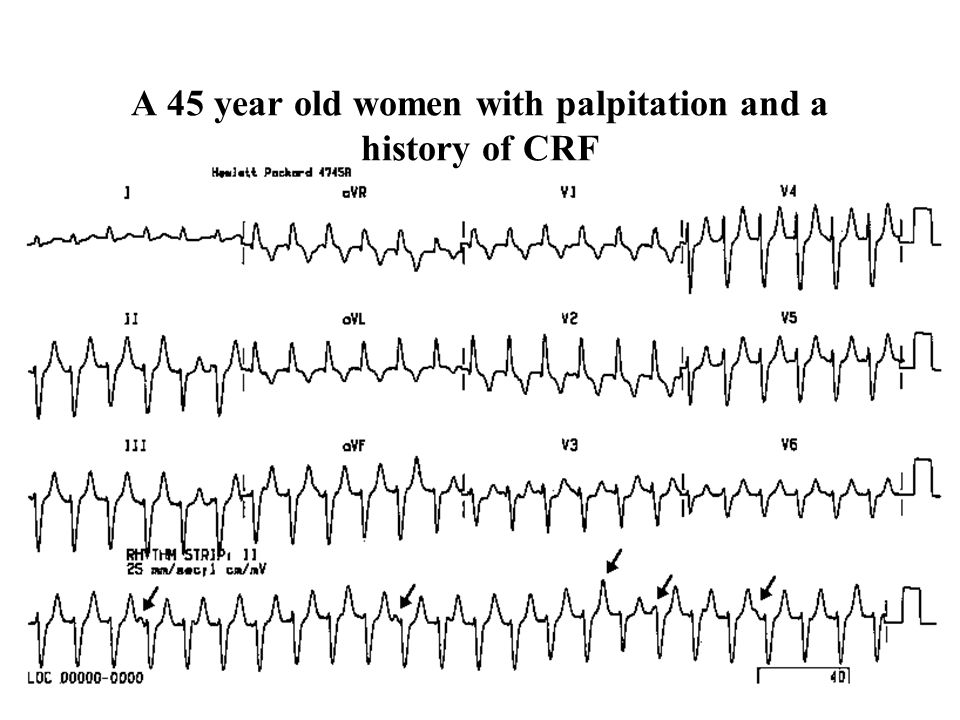 A 45 year old women with palpitation and a history of CRF