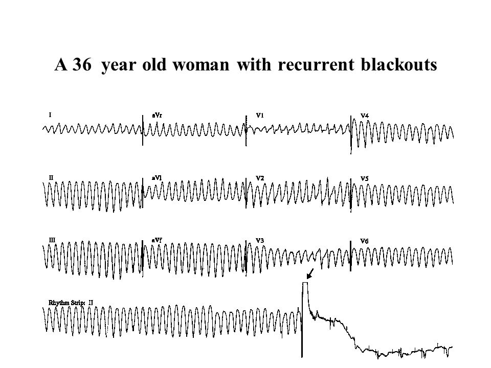 A 36 year old woman with recurrent blackouts