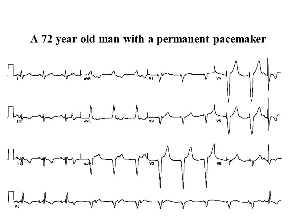 A 72 year old man with a permanent pacemaker
