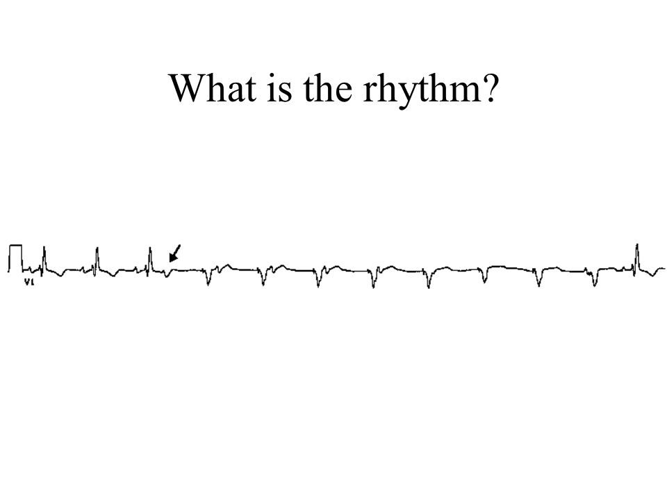What is the rhythm
