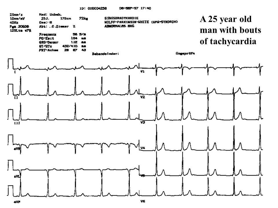 A 25 year old man with bouts of tachycardia