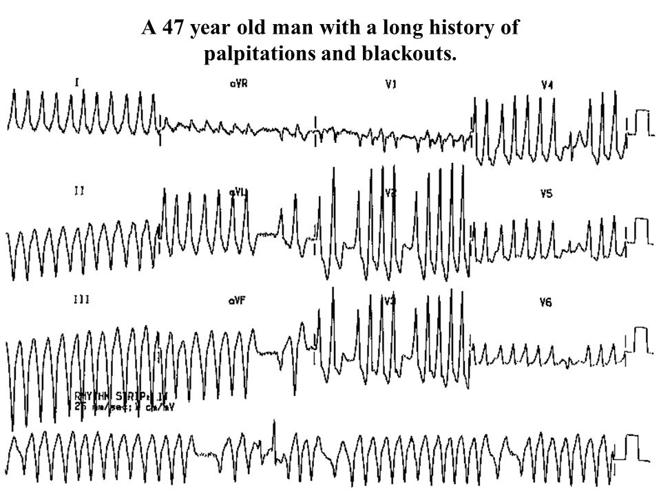 A 47 year old man with a long history of palpitations and blackouts.