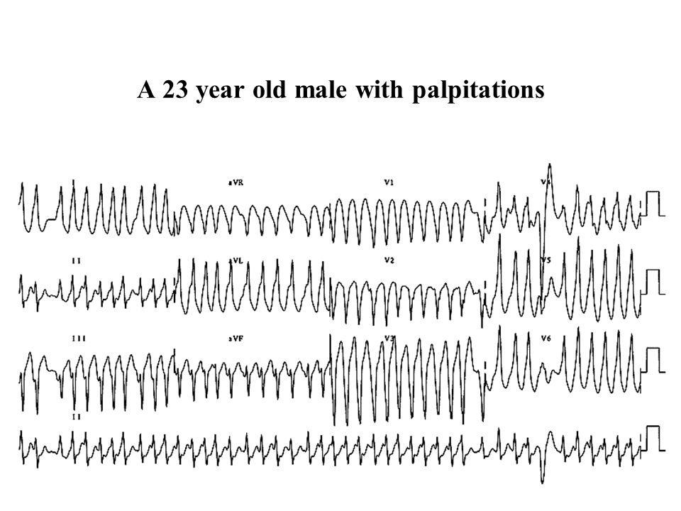 A 23 year old male with palpitations