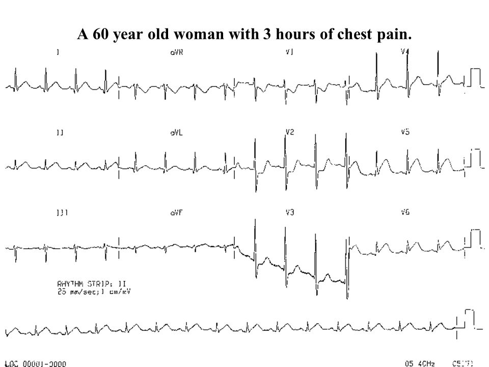 A 60 year old woman with 3 hours of chest pain.