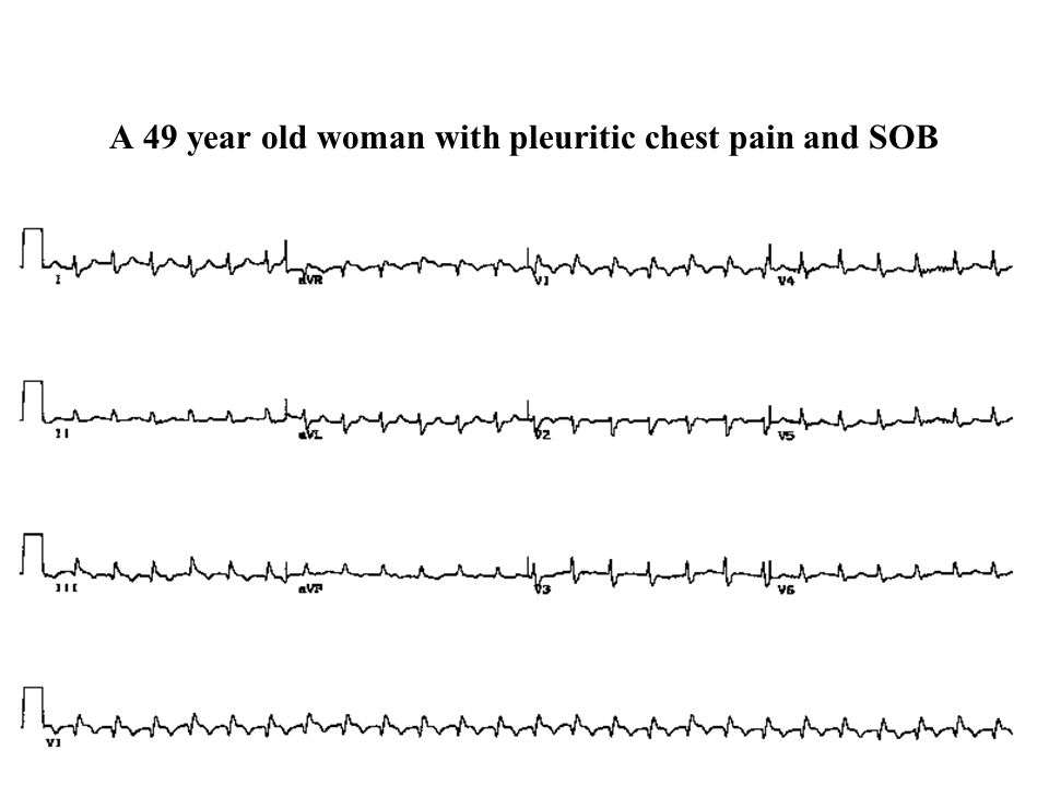 A 49 year old woman with pleuritic chest pain and SOB