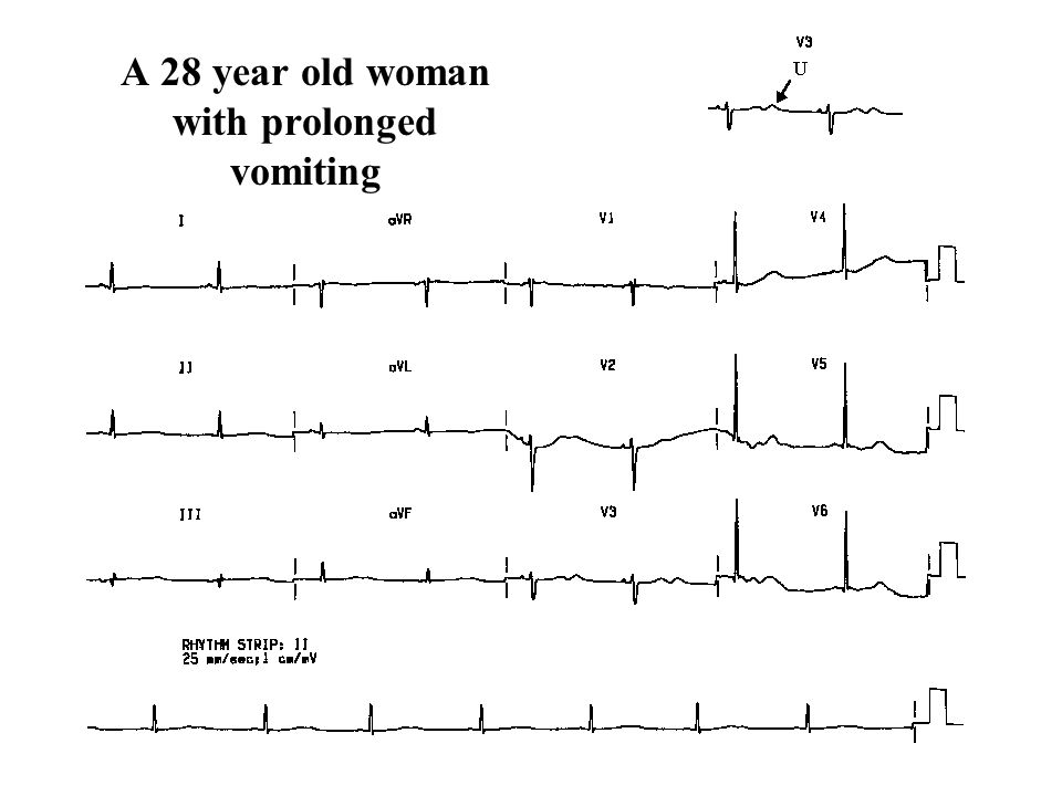 A 28 year old woman with prolonged vomiting