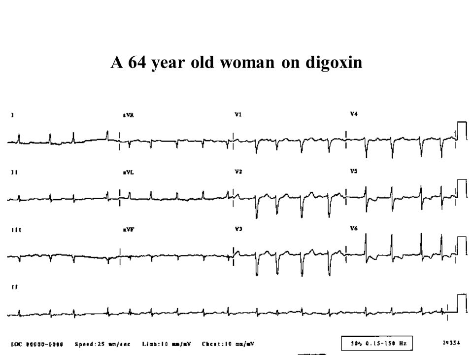 A 64 year old woman on digoxin