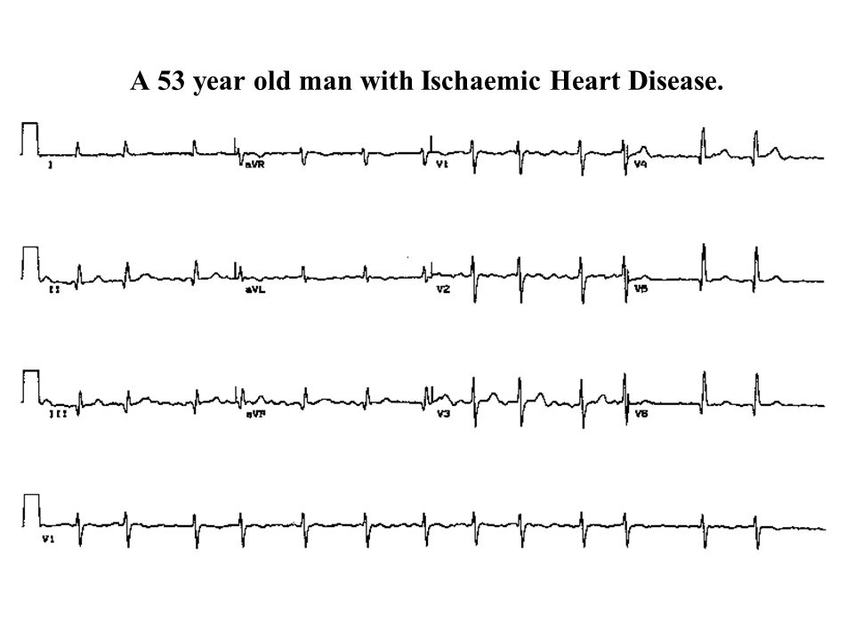 A 53 year old man with Ischaemic Heart Disease.
