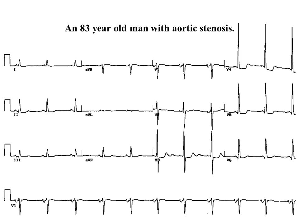 An 83 year old man with aortic stenosis.