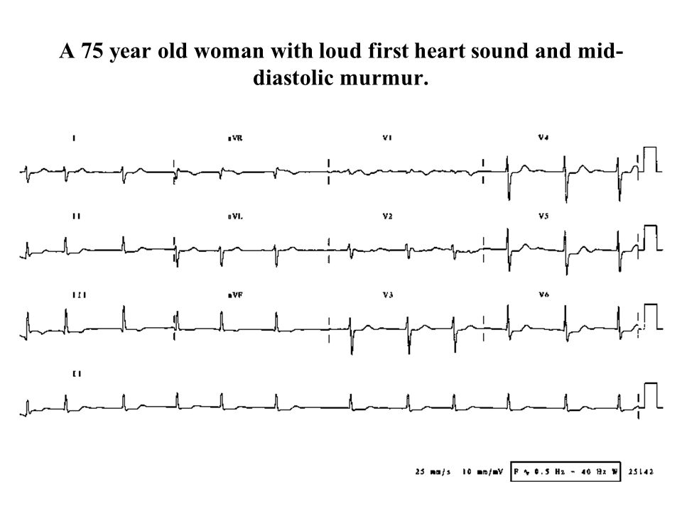 A 75 year old woman with loud first heart sound and mid-diastolic murmur.