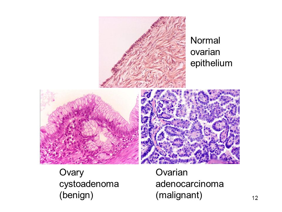 Normal ovarian epithelium