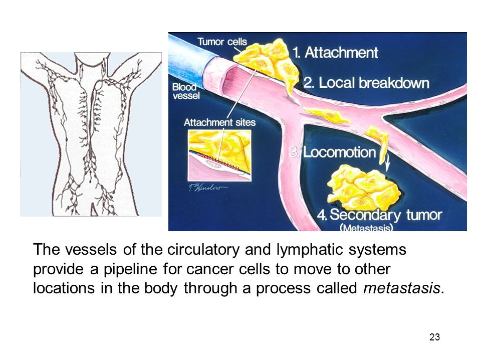 The vessels of the circulatory and lymphatic systems provide a pipeline for cancer cells to move to other locations in the body through a process called metastasis.