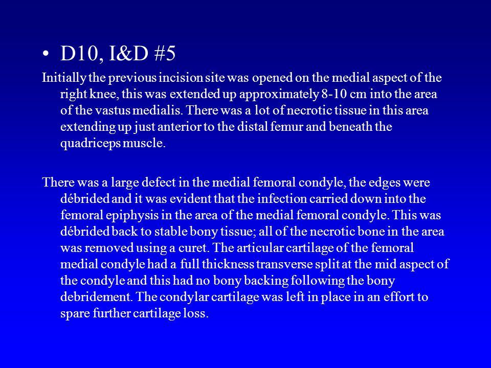 D10, I&D #5