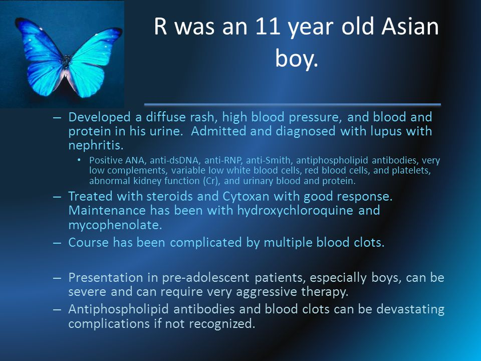 R was an 11 year old Asian boy.
