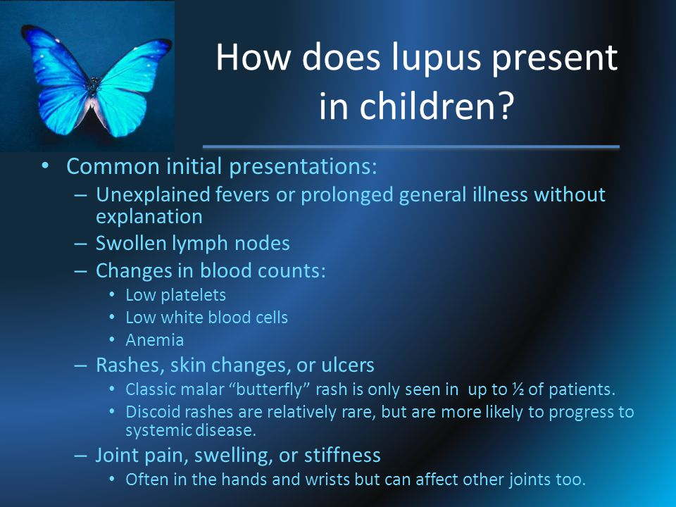 How does lupus present in children