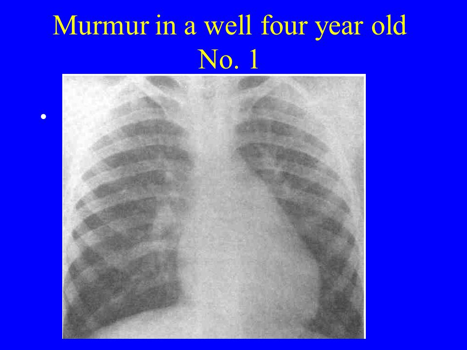 Murmur in a well four year old No. 1