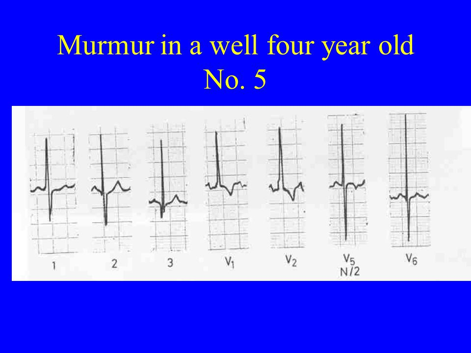 Murmur in a well four year old No. 5