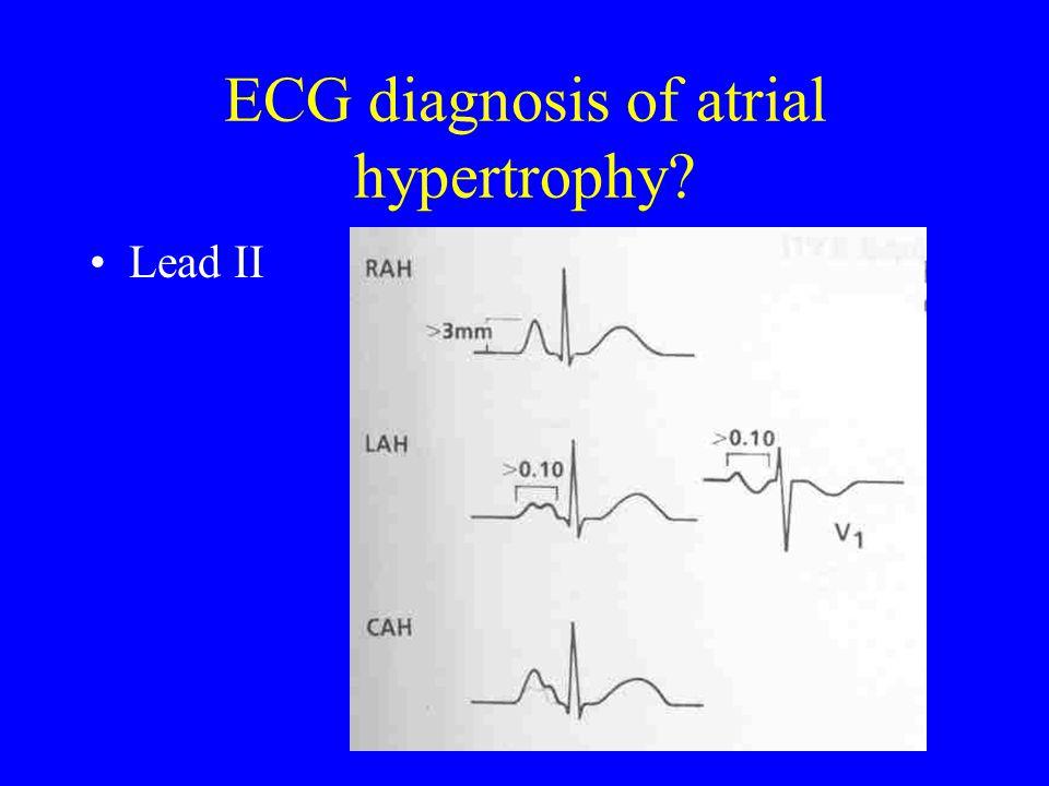 ECG diagnosis of atrial hypertrophy