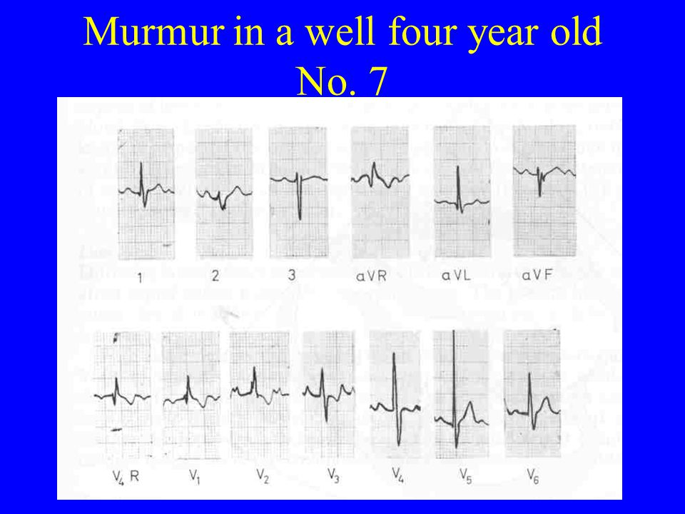 Murmur in a well four year old No. 7