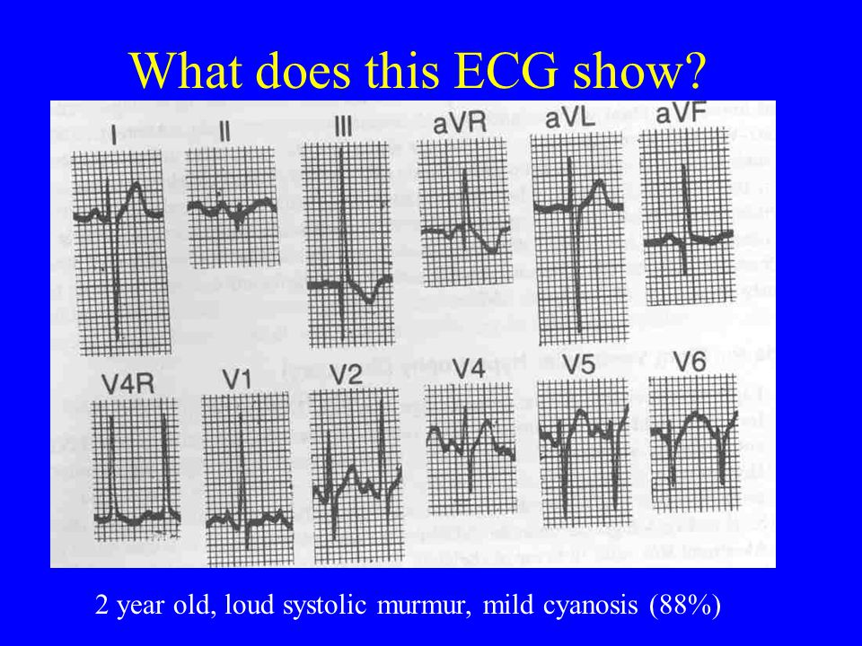 What does this ECG show 2 year old, loud systolic murmur, mild cyanosis (88%)