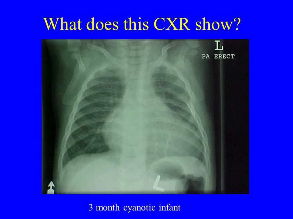 What does this CXR show 3 month cyanotic infant