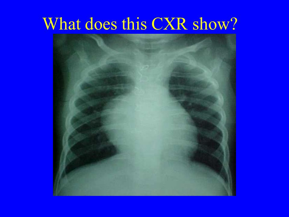 What does this CXR show