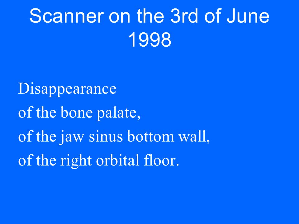 Scanner on the 3rd of June 1998