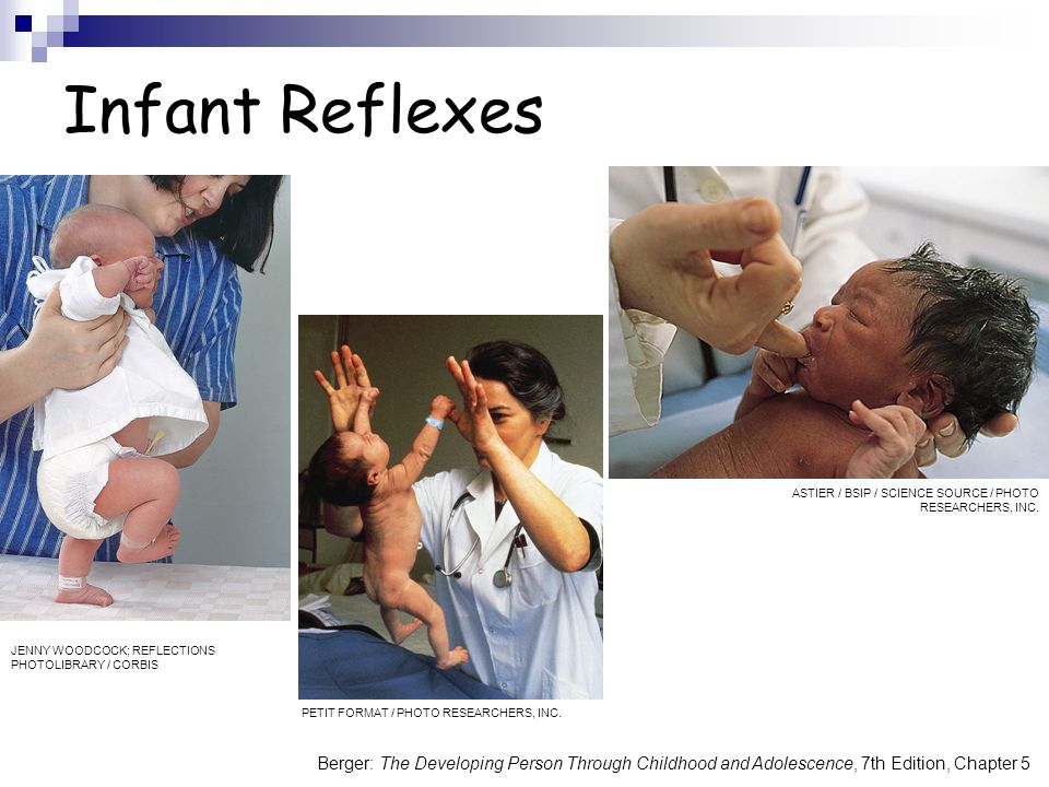 Infant Reflexes ASTIER / BSIP / SCIENCE SOURCE / PHOTO RESEARCHERS, INC. JENNY WOODCOCK; REFLECTIONS PHOTOLIBRARY / CORBIS.